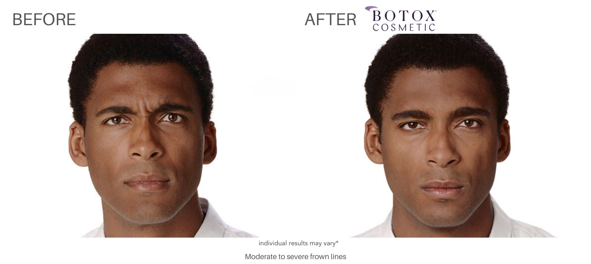 Botox before and after male result Numa Spa in Newport News, VA